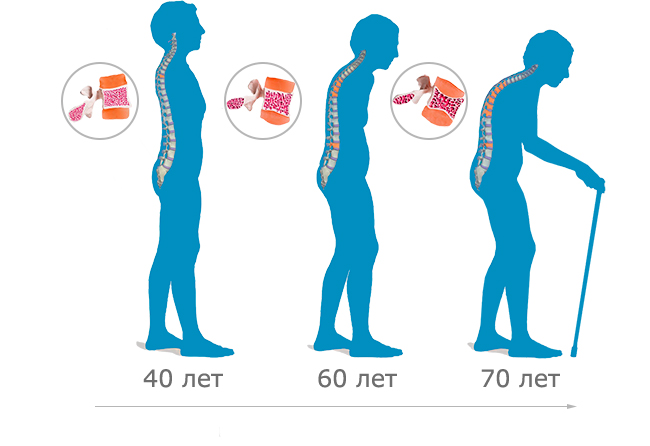 stages-of-osteoporosis5